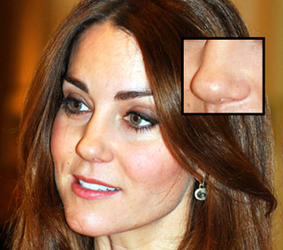 kate-middleton-nose-.jpg